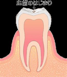 虫歯治療 c0