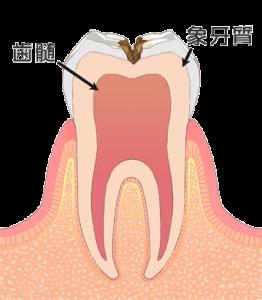 虫歯治療 c2